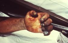 Plague symptoms, swelling hand