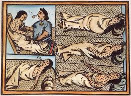 Illustration of smallpox