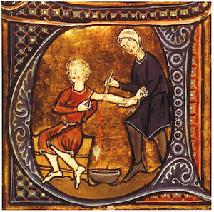 Medieval plague cure: blood draining