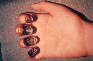 Gangrene effects of the plague